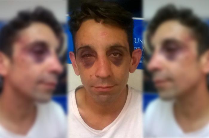 Golpearon a joven activista gay: neonazis frente a otra denuncia