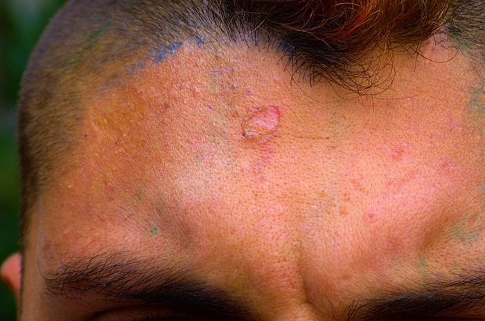 Torturas a un joven en Miramar: desvincularán a tres policías