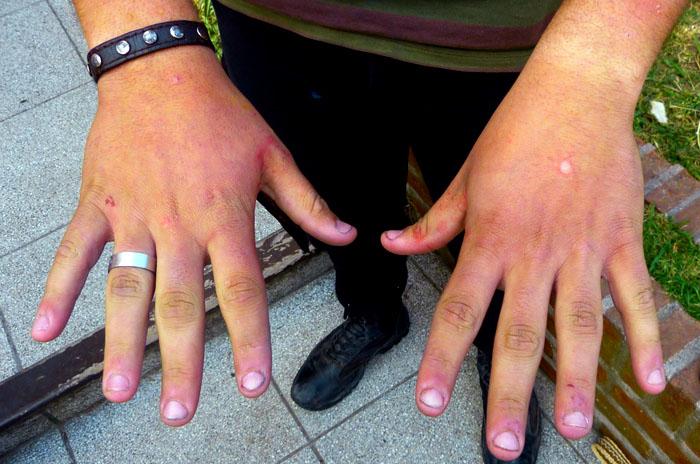"""Tortura en Miramar: """"No queremos vivir en un país de violencia"""""""