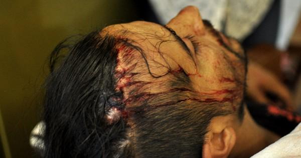 Suba del boleto: incidentes, golpes, agresiones y heridos