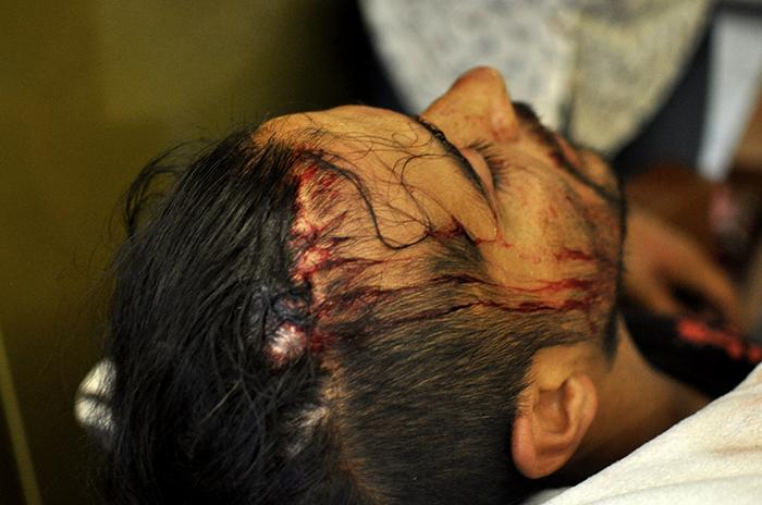 Incidentes, golpes, agresiones y heridos